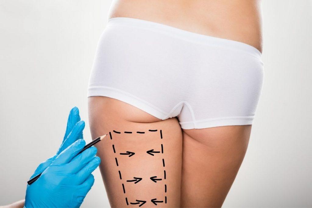 Chrirug w Klinice Genesis przygotowujący pacjentkę do zabiegu liposukcji