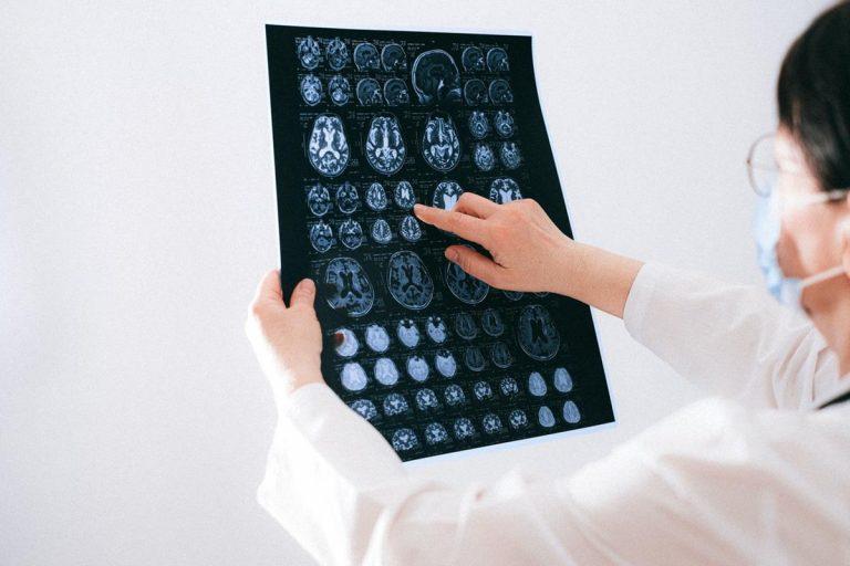 Dlaczego nie wszyscy ufają badaniom  radiologicznym?